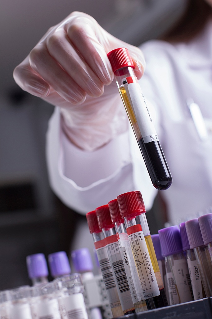 Blood Sample in test tube to test for T Cell exhaustion