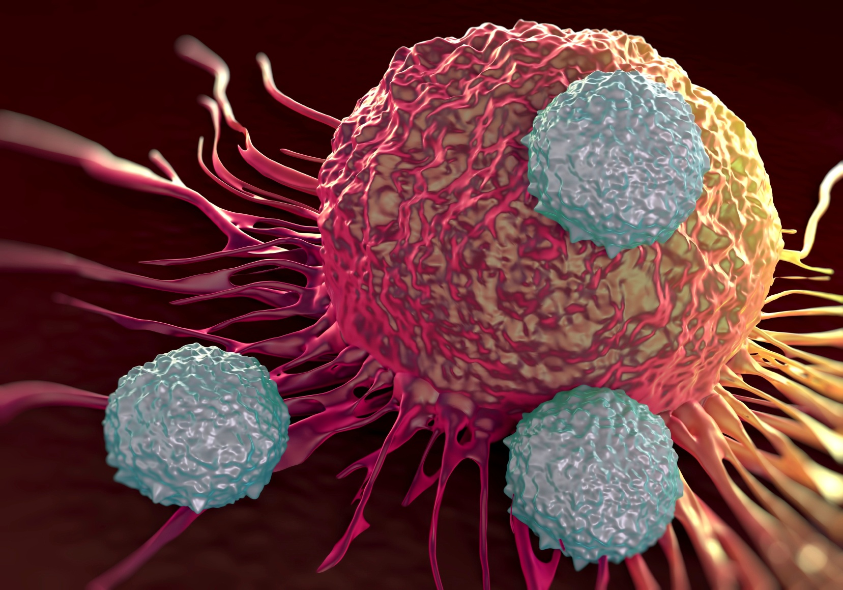 An example of Infiltrating Immune Cells (TIL)